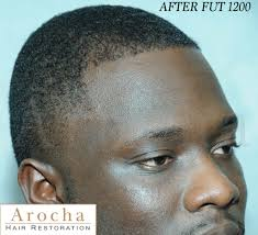 african american hair transplant dr arocha african american fut 1200 forum by and for hair loss