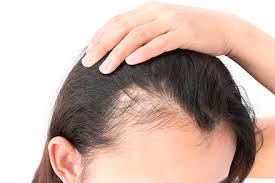 hairstyles for women with alopecia about female hair loss ziering medical