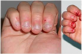 nail biting is a common habit that can cause a lot of damage and