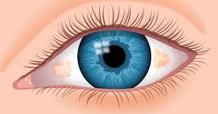 pinguecula yellow bump on eye definition causes and removal
