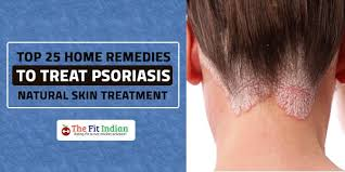 light treatment for scalp psoriasis top 25 home remedies to treat psoriasis natural skin treatment