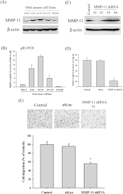 high level of plasma matrix metalloproteinase 11 is associated