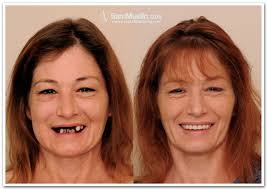 Missing Teeth Meme - dr maneesh rai dental surgeon missing teeth