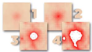 How Do You Get Bed Sores Computer Simulation Predicts Development Progress Of Pressure Sores