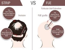fut hong kong hair transplant cost of hair transplantation in abu dhabi hair transplant in
