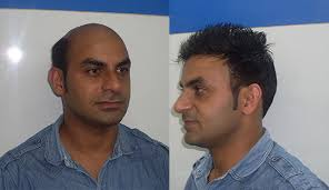 hair bonding hair bonding in noida hair bonding clinic in noida
