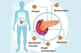 6 symptome bei erkrankungen der bauchspeicheldrüse besser gesund - Bauchspeicheldrüsenschwäche Symptome