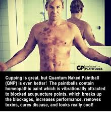 Acupuncture Meme - cor platitudes cupping is great but quantum naked paintball qnp is