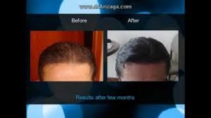 hair transplant america hair transplant specialist south america dr arizaga youtube