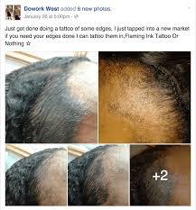 hair tattoo bald scalp micropigmentation vice video