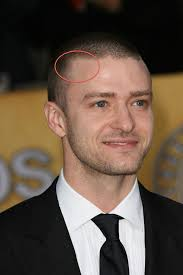 fienes hair transplant celebrity hair loss recession alert is justin timberlake thinning