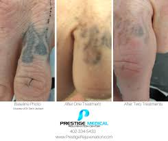 laser tattoo removal prestige medical rejuvenation center omaha