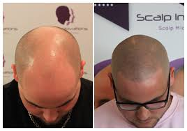 request a free consultation scalp innovations