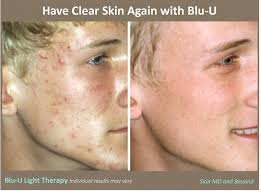 what is light therapy blu u therapy for acne in plano tx acne treatment frisco tx