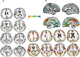 effects of systolic blood pressure on white matter integrity in