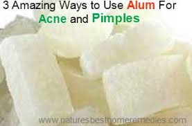 where can i find alum 3 ways to use alum for pimples and acne treatment