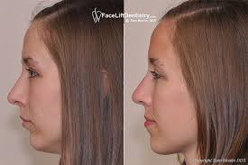 hair styles for protruding chin repositioning the jaw and chin no surgery overbite correction