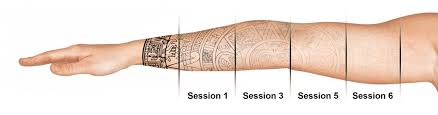 tattoo removal does it work tattoo removal in seattle using pico technology at well medical arts
