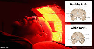 red light therapy for parkinson s photobiomodulation the role of light in preventing and potentially