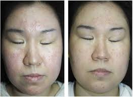 light treatment for skin led light therapy