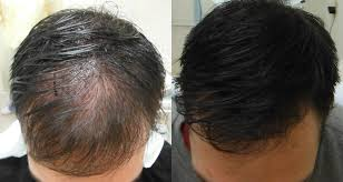 pics of scalp micropigmentation on people with long hair how scalp micropigmentation can work with longer hair vancouver