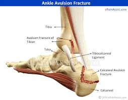 High Ankle Sprain Anatomy Ankle Avulsion Fracture Symptoms Causes Treatment Recovery Time