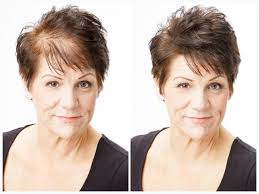 special cuts for women with hairloss complete hair loss solutions nebraska