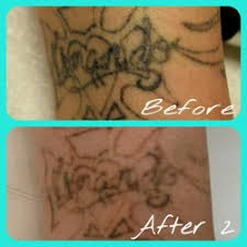oops laser tattoo removal tattoo removal 5655 e grant rd