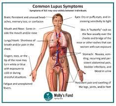 of faith and lupus
