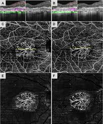 projection artifact removal improves visualization and