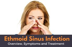 can sinus infection cause dizziness light headed ethmoid sinus infection overview symptoms and treatment