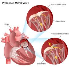 Anatomy Of Heart Valve Mitral Valve Prolapse Cardiac Conditions And Diseases