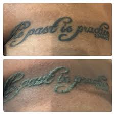 25 best before u0026 after tattoo removal photos images on pinterest