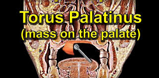 Pictures Of Oral Cancer On Roof Of Mouth by How To Remove A Tumor Lump On The Palate Torus Palatinus Youtube
