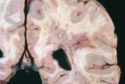 Multiplex Definition Sclerosis Multiplex Definition Of Sclerosis Multiplex By Medical