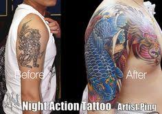tattoo removal in kansas city images tattoo world pinterest