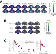 contributions of local speech encoding and functional connectivity