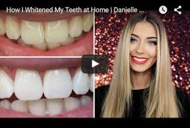 pro light dental whitening system reviews teeth whitening reviews best as of may 2018 smile brilliant