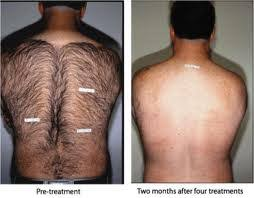 how much does laser hair removal cost on back laser hair removal for men remove unsightly back hair using laser