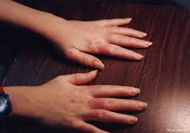 images and animations in arthritis and rheumatism page 27 systemic