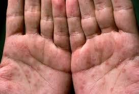 knoten handinnenfläche syphilis symptome apotheken umschau