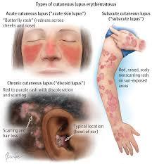 Sle Of Privacy Policy Statement by Cutaneous Lupus Erythematosus Dermatology Jama Dermatology