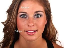 pics of women with no edges smile design smile stylist