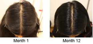 thinning hair in women on top of head alopecia male female pattern dull hair skin india