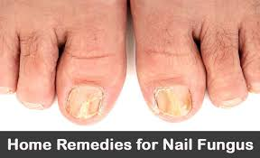 20 diy home remedies for nail fungus