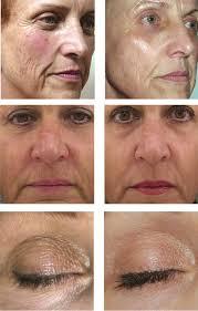 light treatment for skin laserrf360 complete rejuvenation using laser radio frequency