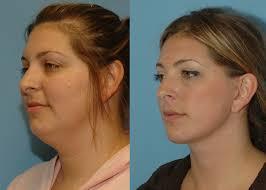 necklift combined beauty pinterest