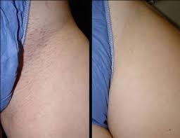 brazilian laser hair removal pictures laser hair removal skinrn aesthetics