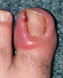 infected ingrown toenail u2013 causes symptoms meaning treatment