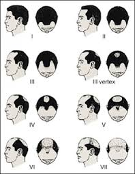 guys haircut numbers 2013 hairstyles for men with balding thinning hair style cuts